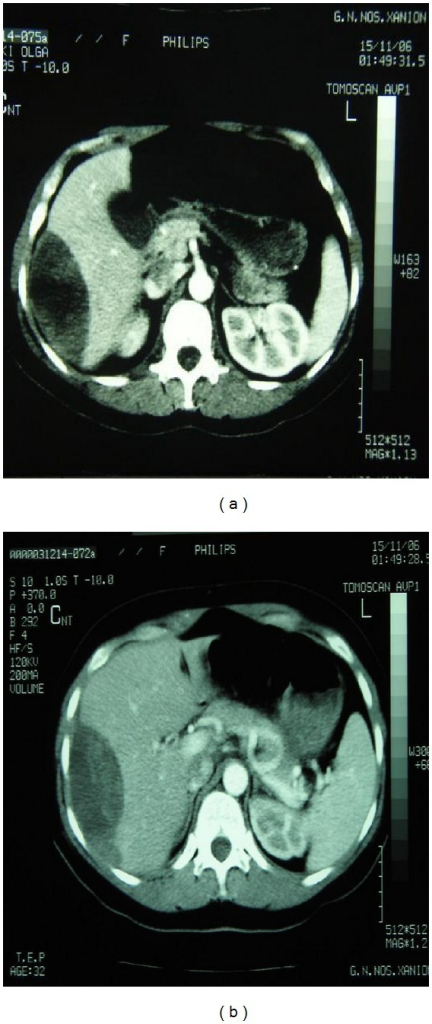 Abdominal computed tomography demonstrating the existence of a large subcapsular hepatic hematoma.