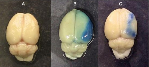 Photograph of brains in sham-operated animal (A), and ischemic rats received vehicle (B) or 0.1 mg/kg candesartan (C). Animals received Evans blue 30 minutes after surgery or middle cerebral artery occlusion (MCAO). The presence of blue color depicted in B and C indicates that extravasation of Evans blue has occurred during ischemia/reperfusion injuries in the right side of the brain and its intensity is related to the quantity of damages of the cerebral vasculature of the lesioned side