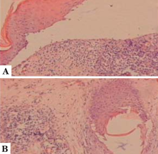 A. HE 200x. Interface dermatitis with lichenoid pattern associatedwith dermo-epidermic detachment and lymphocytic infiltrate in band-like pattern inthe upper dermis. B. HE 200x. Detail of partially destroyed follicle,with perifollicular fibrosis and perivascular lymphocytic infiltrate