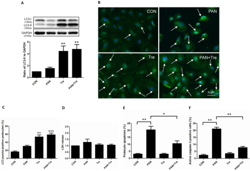 Trehalose decreased PAN-induced apoptosis in human podocytes.Podocyte were treated with PAN (30 µg/ml) or/and Trehalose (50 mM) for 48 h. (A) Trehalose induced autophagy in PAN-treated human podocytes. The expression of LC3-II slightly increased after 48 h PAN treatment, while it dramatically up-regulated in Tre and PAN+ Tre groups. Representative immunoblot images were shown along with the statistical results. **p<0.01 versus CON, n = 6. (B–C) The findings of (A) were confirmed by LC3 immunostaining. Obvious elevated LC3-II bright green puncta (indicated by white arrows) were visualized in trehalose-treated groups (Tre and PAN+ Tre groups), the representative images and statistical results were shown. Nuclei were stained in blue. **p<0.01, ***p<0.001 versus CON, n = 6. (D) No significant changes were observed in podocyte necrosis. LDH in culture medium of 4 groups was measured, n = 4. (E) Elevated apoptosis in PAN-treated podocytes was decreased by trehalose. Apoptosis was measured by flow cytometry with YO-PRO-1/PI assay. Podocyte apoptosis was induced by PAN and decreased significantly by trehalose. *p<0.05, **p<0.01 versus CON, n = 8. (F) The findings of (E) were confirmed by the data of active caspase-3 measurement. The active caspase-3 positive podocytes were measured by flow cytometry. The changes pattern was similar to podocyte apoptosis measured by YO-PRO-1/PI assay. **p<0.01 versus CON, n = 7.