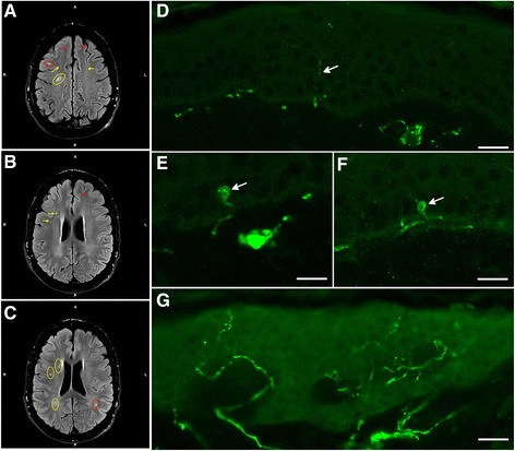Magnetic resonance imaging (MRI) and small fiber neuropathy diagnosis by PGP9.5 immunofluorescence. (A-C) Fluid attenuated inversion recovery (FLAIR) MRI of patient #1 showed multiple, punctuated white matter lesions from periventricular (yellow arrows and circles) to subcortical (red arrows and circles) without gadolinium enhancement. (D) Skin biopsy analysis of patient #2 showed the reduction of the small epidermal nerve fibers (arrow). Scale bar = 20 μm. (E-F). The number of focal axonal swellings (arrows) larger than 1.5 μm was increased. Scale bar = 10 μm. (G) Skin biopsy of a healthy control. Scale bar = 30 μm.