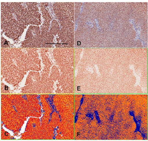 Immunohistochemical intensity representated as H-score by imaging software counts. The A–C photography are the sample 1. The D–F photography are the sample 2. The positive color in our experiment is brown. The photography (A,D) are initially changed to brown-color channels (B,E) before intensity counting. The positive pixel counts (C,F) shows red color as strong positivity (staining intensity grade 3), orange color as medium positivity (grade 2), yellow color as weak positivity (grade 1) and blue color as negativity (grade 0), and finally quantifies the areas and intensities to get H-scores ranged from 0 to 300. The H-score of sample 1 by 175 is higher than sample 2 by 133. Bar = 200 µm.