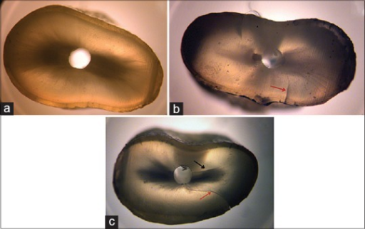 Representative microscopic images from each experimental group. Arrows point at dentinal defects. (a) No defect (devoid of any lines or cracks) (b) incomplete defects (e.g., a craze line, a line extending from the outer surface into the dentin but that did not reach the canal lumen; or a partial crack, a line extending from the canal wall into the dentin without reaching the outer surface). (c) Fracture (a line extending from the root canal space to the outer surface of the root)