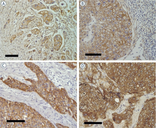 Examples of immunohistochemical EGFR-staining (brown) of samples from metastasized urinary bladder cancers. (A) Primary tumor. (B) Regional (local) lymph node metastasis (from the same patient as in A). Note the large number of lymphocytes (small blue haematoxylin stained nuclei to the right). (C) Primary tumor. (D) Colon metastasis (classified as distant). All samples were scored 3+ and EGFR-positive. All bars correspond to 100μm.
