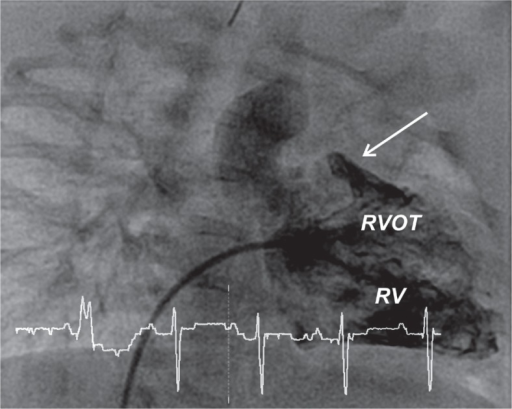 Angiography before procedure; catheter is placed in the right ventricle (RV). Critical stenosis of the right ventricle outflow tract (RVOT), arrow shows the site of future stent implantation – subvalvular stenosis