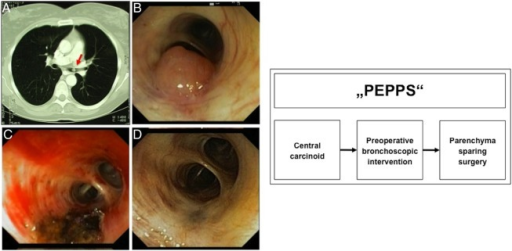 "Procedure of Endobronchial Preparation for Parenchyma-sparing Surgery (""PEPPS""). (A) Centrally located, endoluminal growing carcinoid tumour, diagnosed by CT. (B) Endoscopic view of a bronchus obstructing carcinoid tumour in the medial lobe bronchus before segment 4/5. (C) Bronchial view immediately after cryoablation and laser intervention. (D) The same bronchus in a bronchoscopic control 2 months after intervention before surgery."