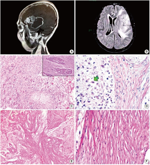 Magnetic resonance imaging scans and biphasic histological features. (A) Post-contrast, T1-weighted sagittal section. A heterogeneous tumour with an enhancing peripheral rim is shown. (B) Fluid-attenuated inversion recovery sequence. Considerable outlying oedema can be seen. (C) Glioblastomatous component with palisading necrosis and microvascular proliferation (upper right inset). (D) Boundary zone with neoplastic cells of gemistocytic appearance (left) next to apparently atypical spindle cells (right). Mitoses are noticeable exclusively in neoplastic glial cells (arrow). (E) Mesenchymal component with solid fascicular tissue intermingled with loose astrocytic areas. (F) High-magnification photomicrograph of the cytologically bland mesenchymal constituent.