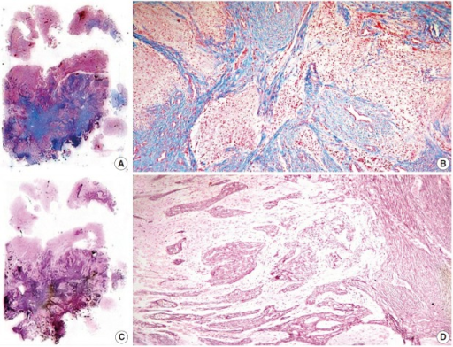 Histochemical stains of whole-mount sections. (A, B) Collagen-rich tissue seen with Masson's trichrome. (C, D) Reticulin pattern showed with reticular fiber stain.