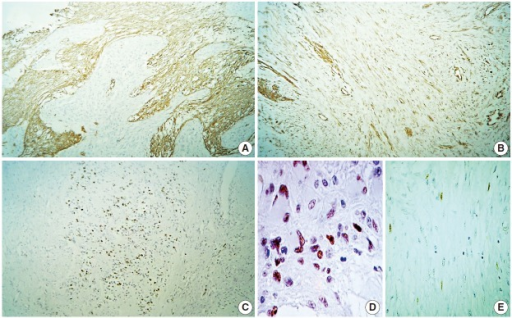 Immunohistochemistry panel. (A) Glial fibrillary acidic protein. (B) Vimentin. (C) Ki-67. (D) p53 (glial portion) with diffuse immunolabeling. (E) p53 (mesenchymal portion) with very focally positive immunoreactivity.
