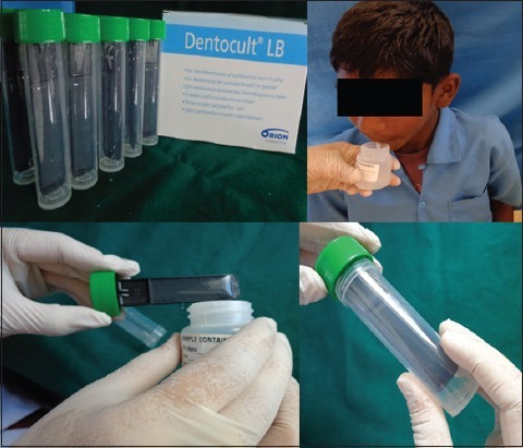 Dentocult Lactobacilli strip kit and procedure for sample collection.