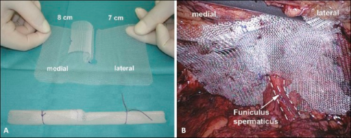 Creation and placement of the prolene mesh for a right sided inguinal hernia. Figure 3(A). A Prolene mesh is trimmed to measure 10 cm x 15 cm. A cut is made from the distal end of the mesh and a hole, to accommodate the cord structures, is made at the end of this cut as shown. A flap is placed medial to the cut and held in position by a suture. The mesh is rolled and a short and long tie hold the medial and lateral aspect respectively. Figure 3(B). The prolene mesh is unfurled so that it covers the fascial defect; the flap is unrolled to cover the cut through the mesh and the hole allows for the cord structures to pass through. It is secured in place by the peritoneum without need for suturing or stapling.