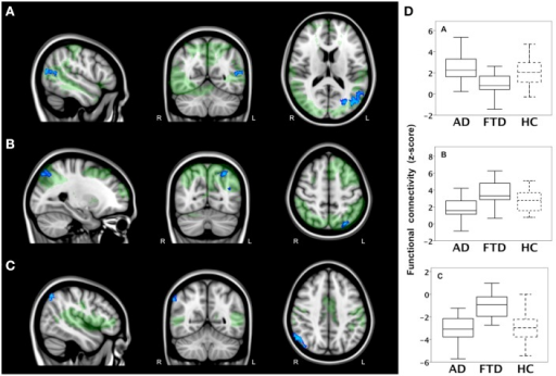 Functional connectivity in bvFTD vs. AD: network-to-region connectivity. Differences in functional connectivity between green networks and blue voxels in behavioral variant frontotemporal dementia (FTD) and Alzheimer's disease (AD) (TFCE, FWE-corrected). (A) Decreased functional connectivity between lateral visual cortical network (green) and lateral occipital cortex and cuneal cortex (blue) in bvFTD compared with AD. (B) Decreased functional connectivity between dorsal visual stream network (green) and lateral occipital cortex and parietal opercular cortex (blue) in AD compared with bvFTD. (C) Less negative functional connectivity between auditory system network (green) and angular gyrus (blue) in bvFTD compared with AD. Images are overlaid on the MNI-152 standard anatomical image. (D) Subjects' mean z scores were extracted from brain areas with group differences in functional connectivity (blue areas). Boxplots show median, lower, and upper quartile, and sample minimum and maximum z scores for patients with AD, patients with bvFTD, and healthy controls (HC, dotted lines).