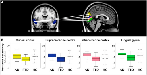 Functional connectivity in bvFTD vs. AD: region-to-region connectivity. Differences in pairwise functional connectivity between behavioral variant frontotemporal dementia (FTD) and Alzheimer's disease (AD). (A) Decreased functional connectivity between right superior temporal gyrus (blue area, coronal slice) and cuneal cortex (yellow), supracalcarine cortex (blue), intracalcarine cortex (pink), and lingual gyrus (green) in bvFTD compared with AD. Images show brain areas based on the probabilistic Harvard-Oxford structural atlas overlaid on coronal and sagittal slices of the MNI-152 standard anatomical image. (B) Subjects' correlation scores were extracted from brain areas with differences in functional connectivity between the two patient groups (right cuneal, supracalcarine, intracalcarine cortex, and lingual gyrus). Boxplots show median, lower, and upper quartile, and sample minimum and maximum correlation scores for patients with AD, patients with bvFTD, and healthy controls (HC, dotted lines).