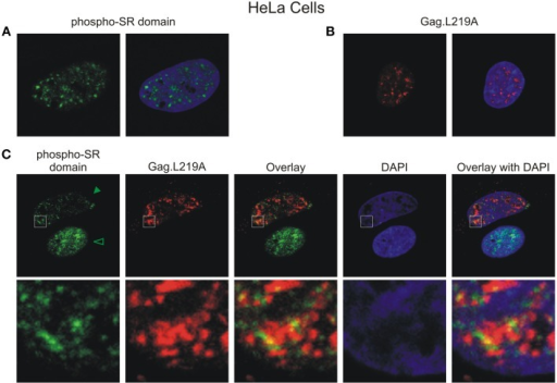 Gag.L219A localization with endogenous splicing speckles in HeLa cells. (A) Visualization of endogenous splicing speckles in HeLa cells using immunofluorescence with α-phospho RS antibody (also called α-SC35 antibody; see Materials and Methods). (B) Localization of Gag.L219A in unstained HeLa cells fixed and permeabilized using the conditions outlined in Materials and Methods used to visualize endogenous splicing speckles. (C) Gag.L219A transfected HeLa cells were stained with α-phospho RS antibody. The Gag.L219A and α-phospho RS channels were combined (Overlay). This merged image was overlaid with the DAPI channel (Overlay with DAPI). The same region from each channel denoted by the white box was cropped, enlarged, and displayed in the bottom panel. The intensity of α-phospho RS antibody decreased in the presence of Gag.L219A (indicated by solid arrowhead) compared to cells in which Gag.L219A was not expressed (indicated by open arrowhead) (p < 0.001; 6 cells were analyzed per condition).