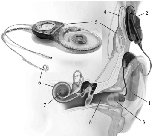 Cochlear implant system for hybrid stimulation. It consists of external (1–3) and internal (implanted) components (4–6). Sounds are captured and digitized by the external sound processor (1, including one or more microphones). Signals and energy are transcutaneously transferred to the implanted portions using an external (2) and an internal (4) coil. These signals are converted by the implant (5) into stimulus-correlated electrical pulses and transmitted to the electrode array (6) implanted into the cochlea (7). In this way, electric stimulation evokes neural responses in the intact auditory nerve. Additionally, low-frequency sound is amplified by the sound processor (1) and transmitted to the normal hearing pathway using an earmould (3) in the external auditory canal (8) (images by courtesy of Cochlear Ltd.).