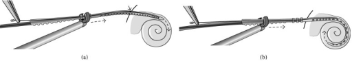 Schematic illustration of the Advanced Off-Stylet (AOS) technique. (a) The electrode array is inserted into the inner ear with the stylet inside until a marker is at the level of the cochleostomy site. (b) The stylet is kept stationary and the implant is advanced further into the cochlea until full insertion depth is achieved (image provided by courtesy of Karl STORZ, Tuttlingen, Germany).