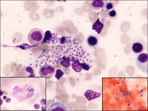 A Wright stained-smear showing numerous extracellular and intracellular yeast forms of Histoplasma capsulatum (×1,000), which were PAS positive (inset on the lower left) and gave a positive Prussian blue reaction (inset on the lower right).