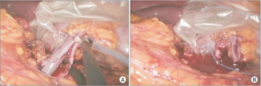 Laparoscopic view. (A) Cutting of renal vessels. (B) Draining of blood from graft.