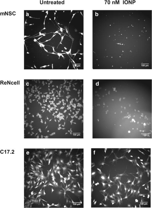 Representative images of untreated mNSCs (a), ReNcells (c) and C17.2 cells (e) as well exposed to 70 nM IONP (b, d, f). The mNSCs are affected in terms of cell area and circularity. The altered circularity in the ReNcells is less outspoken as initial morphology is less complex. Only the cell area is affected in the C17.2 cells