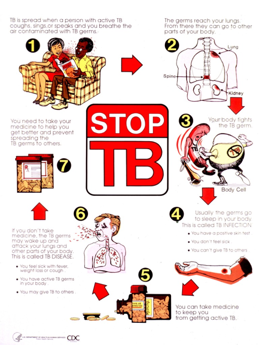 <p>Predominantly white poster with multicolor lettering.  Title in center of poster.  Illustrations and text surrounding the title explain how tuberculosis is spread and the importance of taking medication.  Publisher information in lower left corner.</p>