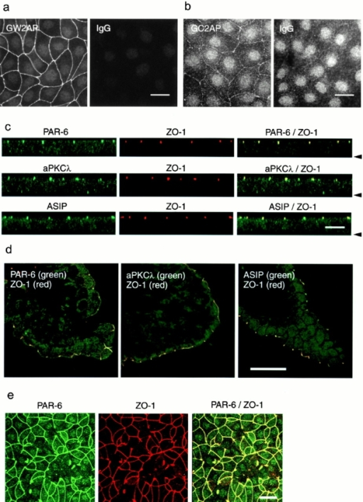 Colocalization of PAR-6, aPKCλ, and ASIP/PAR-3 with ZO-1 at the apical end of cell–cell contact region of epithelial cells. (a and b) Immunofluorescence staining of MDCK cells with anti–PAR-6 polyclonal antibodies, GW2AP (a) and GC2AP (b). IgG means an equal amount of normal rabbit IgG used as a negative control. In b, the photograph was taken at higher sensitivity than in a to visualize weak cell–cell staining by GC2AP. (c) Confocal z-sectional view of MDCK cells doubly stained with anti–PAR-6 (GW2AP), anti–aPKCλ (λ1), or anti–ASIP antibodies (green), together with anti–ZO-1 antibody (red). The arrowhead indicates the position of the basal membrane. All three proteins colocalize with ZO-1 to the apical end of lateral membrane. (d) Immunostaining of a frozen section of mouse intestinal epithelium with anti–PAR-6 (GW2AP), anti–aPKCλ, or anti–ASIP antibodies (green). Only merged views with anti–ZO-1 staining (red) are shown. (e) Overexpression of aPKCλkn affects the junctional localization of PAR-6 as well as ZO-1. Bars, 25 μm (a, b, d, and e) and 10 μm (c).
