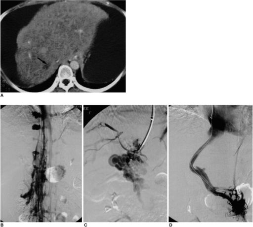 Case 4. A 38-year-old woman who was a candidate for liver transplantation.A. Contrast-enhanced CT scan shows a thrombosed hepatic vein (arrow), inhomogeneous parenchymal enhancement, and a substantial amount of ascites, compatible with Budd-Chiari syndrome.B, C. IVC venogram (B) and angiogram (C) obtained after direct intrahepatic puncture show the collateralization typical of Budd-Chiari syndrome.D. Transcaval TIPS was performed due to occlusion of hepatic veins.