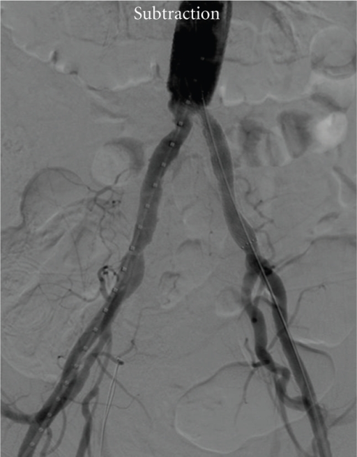 Final result after stent deployment and 6 mm balloon angioplasty. Left common iliac artery flow was restored without images of contrast extravasations.