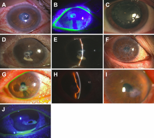 Clinical findings of perforated cornea before and after treatment with deep anterior lamellar keratoplasty or glue. A, B: Case 1 photographs of the perforated cornea upon admission (left eye). A: The perforation was located in the paracentral cornea. The size of the perforation was 0.5 mm×0.5 mm. The surrounding ulcer was 2.0 mm×1.5 mm. B: Preoperative photo showing a positive Seidel test. C: Photograph of the cornea after deep anterior lamellar keratoplasty. Five months later, the corneal graft remained stable and transparent. D, E: Case 2 slit lamp photograph taken upon admission (right eye). D: The perforation was in the paracentral cornea and was 0.5 mm×1.0 mm. E: Photograph showing the paracentral corneal perforation plugged by the iris. F: Slit lamp photograph after the operation. One year after deep anterior lamellar keratoplasty, the corneal graft was stable and transparent. G, H: Case 3 slit lamp photograph taken upon admission (left eye). G: The perforation was inferior to the center of the cornea and was 0.5 mm×0.5 mm. An ulcer (2.0 mm×1.0 mm) was observed inferiorly. H: The anterior chamber was maintained by the prolapsed iris. I: Slit lamp photograph 3 months after healing of the perforated cornea without surgical intervention. J: Case 4 slit lamp photograph taken upon admission (right eye). The perforation was located inferior to the center of the cornea. The cornea was 3.5 mm×1.5 mm, and the perforation was 2.0 mm×1.0 mm. The Seidel test was positive.