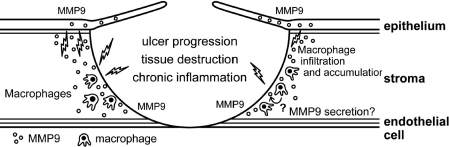 Hypothetical etiology of corneal perforation in cGVHD patients. CD68+ macrophages engulf and degrade the recipient's degenerated epithelium as a foreign body, leading to the secretion of a large amount of proinflammatory cytokines, and the subsequent expression of MMP9 on macrophages or the corneal stroma and epithelium.