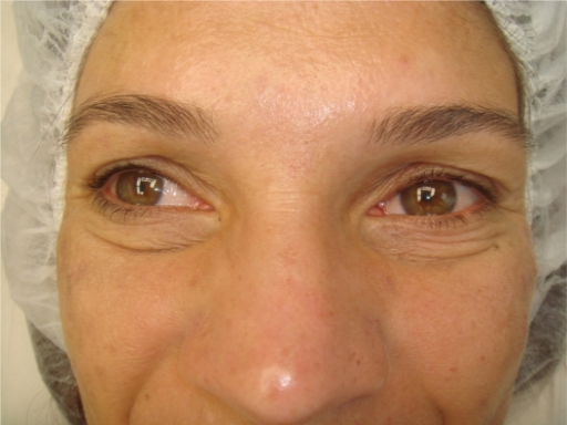 Monopolar radiofrequency treatment of lower eyelids before treatment. The usual treatment series is four to six applications.