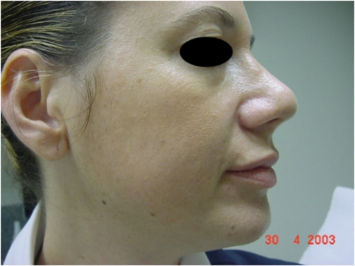 Hyaluronic acid filler for facial sculpturing (midface) two weeks after injection.