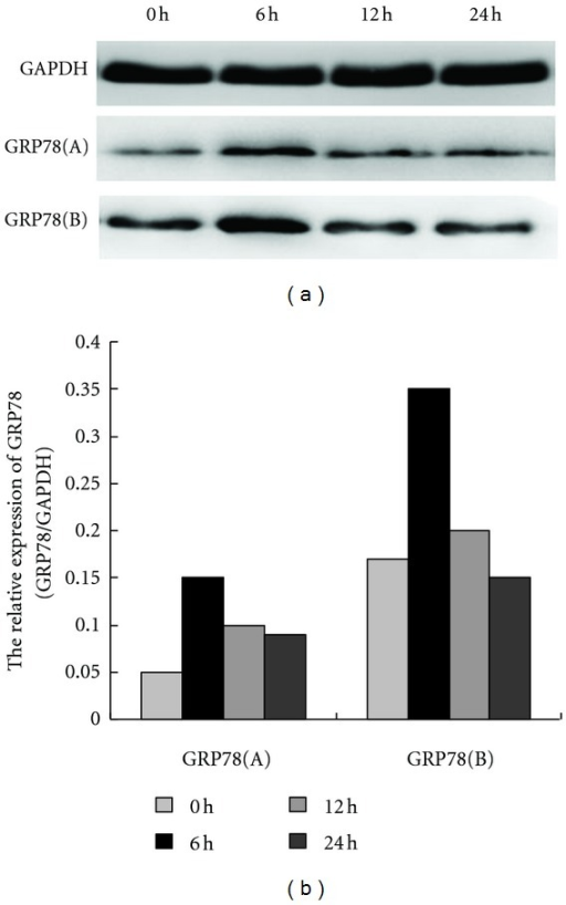 APC-induced GRP78 expression in the presence and absence of LPS stimulation. Following HUVEC treatment with 150 nM APC for 0, 6, 12, and 24 h, upregulated GRP78 expression was initially detected at 6 h by Western blot analysis (GRP78 (a), P < 0.05), and then generally decreased. After continuous exposure to 10 ng/mL LPS for 24 h, HUVECs were treated with 150 nM APC for 0, 6, 12, and 24 h. Upregulated GRP78 expression was also detected at 6 h by Western blot analysis (GRP78 (b), P < 0.05), and then generally decreased. A significant difference in APC-induced GRP78 expression in the presence (b) and absence (a) of LPS stimulation was detected at 6 h, which indicated that 150 nM APC plays a more significant role in this effect following LPS stimulation (P < 0.05).