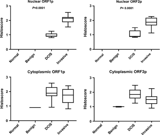 Differential expression of ORF1p and ORF2p. Boxplots represent the comparison of histoscores between cytoplasmic and nuclear expression of ORF1p and ORF2p in breast tumors. This revealed a significant increase in the nuclear expression of both ORF1p and ORF2p in invasive cancers compared with DCIS