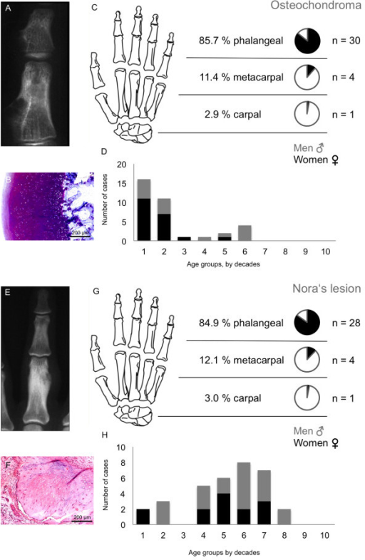 Osteochondroma and Nora's lesion tumour characteristics. An osteochondroma is displayed in the X-ray (A). Microscopic analysis showed typical hyaline cartilage cup and growth plate-like bone proliferation (B). Most cases were found in phalangeal bones (30 cases) (C) and early in life, first two decades (D). Nora's lesions can be identified in the radiographic image (E) and irregular periosteal chondro-osseous proliferation with no atypia (F). Nora's lesions were most often found in the phalanges (G). Distribution of Nora's lesions for gender and age is illustrated in part H.