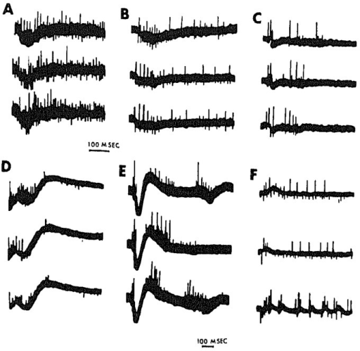 Examples of all-or-none responses triggered in different preparations or at different recording sites by electrical stimulation in organotypic mouse medulla cultures. Recorded in 1968 at the Rose Kennedy Center, Albert Einstein College of Medicine, New York, NY, USA.