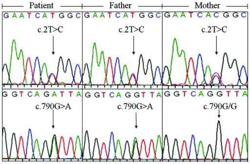 SLC25A13 gene variations in the family unveiled by direct DNA sequencing. The patient and her father both harbored the c.2T>C and c.790G>A (p.V264I) variations, while the mother was only a carrier of the former variation.