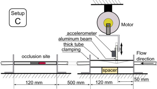 In-vitro setup C. Actuation setup C where mechanical deformation is applied 60 cm from the stenosis site to a larger vessel.