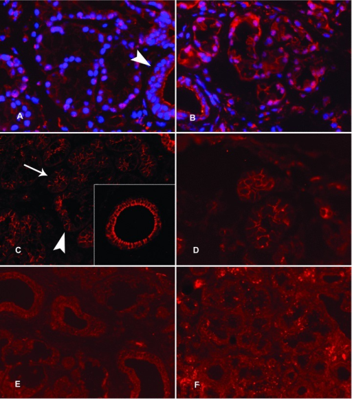 Expression of 5α-reductase and aromatase in labial salivary glands. In healthy labial salivary glands, 5α-reductase staining was strong in the nuclei of the acinar cells, whereas it had a more diffuse localization in the ductal epithelial cells (A, arrow head). This partial nuclear localization of 5α-reductase is very evident with nuclear DAPI counterstain (A). In contrast, aromatase immunoreactivity was polarized in the acinar cells so that it was expressed strongly on apical and lateral cell membrane domains (C, arrowhead) but was barely seen in the basal cell membrane (C, arrow) (C). Insert in (C): In salivary ducts aromatase was often seen also on the basal aspects of the ductal epithelial cells. In labial salivary glands of patients with SS, 5α-reductase staining was mostly cytoplasmic (B, compared to A). For the expression of aromatase in SS salivary glands, a similar expression was found as in healthy controls (D, compared to C). (E) and (F): The negative staining controls with normal, non-immune goat IgG, used instead of and at the same concentration as the specific primary antibodies, confirm the specificity of the stainings. Objective magnification ×200 in all panels and ×400 in the insert.