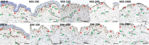 Micrographs of immunohistochemical staining of type IV collagen.Red arrowheads indicate the basement membrane of epidermis and green arrowheads indicate the basement membrane of capillaries. Scale bar: 100 μm.