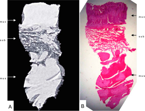 Horizontal scan (A) and histology staining of the esophagogastric junction (B).The normal esophagogastric junction wall was clearly depicted with Phase-contrast X-ray CT including the mucous, submucosa and muscular layers (A). muc: mucous layer; sub: submucosa layer; mus: muscular layer.
