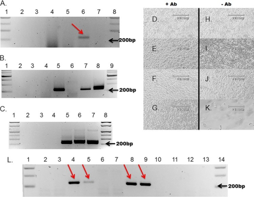 T7 RNA transcripts from CVB3 and CVB3-CKO clones can be transfected into mice, and virus replicates posttransfection. Nested RT-PCR could detect viral RNA using total RNA from the hearts and spleens of mice transfected with wt CVB3 or CVB3-CKO T7 RNA transcripts. (A) A representative gel demonstrating the necessary 10-fold serial dilutions of total extracted tissue RNA (in this case, from heart) to detect the low level of replication of CVB3-CKO in mouse tissue at 20 days posttransfection (lanes 1 and 8, molecular size marker; lane 2, no-RNA RT-PCR control; lane 3, untransfected mouse RNA; lane 4, 10-fold dilution of RNA from a CVB3-CKO-transfected mouse; lane 5, 100-fold dilution; lane 6, 1,000-fold dilution; lane 7, 10,000-fold dilution). CVB3-CKO RNA was detectable only at a 1,000-fold dilution of RNA (arrow, lane 6). (B) Detection of viral RNA in the spleens of transfected mice (lanes 1 and 9, molecular size marker; lane 2, no-cDNA PCR control; lane 3, no-RNA RT-PCR control; lane 4, HeLa cell RNA control; lane 5, 1,000 copies of CVB3 cDNA from T7 transcripts; lane 6, untransfected mouse RNA; lane 7, 1,000-fold dilution of RNA obtained from a CVB3-CKO-transfected mouse at day 20 posttransfection; lane 8, 100,000-fold dilution of RNA obtained from a wt CVB3-transfected mouse at day 8 posttransfection). (C) Detection of viral RNA in the hearts of transfected mice (lanes 1 and 8, molecular size marker; lane 2, no-cDNA PCR control; lane 3, no-RNA RT-PCR control; lane 4, untransfected mouse RNA; lane 5, 1,000 copies of CVB3 cDNA from T7 transcripts; lane 6, 100-fold dilution of RNA obtained from a CVB3-CKO-transfected mouse at day 20 posttransfection; lane 7, 10,000-fold dilution of RNA obtained from a wt CVB3-transfected mouse at day 4 posttransfection). (D to K) RNase-treated homogenates of spleens were passaged onto HeLa cells at approximately 90% confluence and incubated overnight with (D to G) or without (H to K) neutralizing antibodies (D and H, no homogenate; E and I, control mouse homogenate; F and J, homogenate obtained from CVB3-CKO-transfected mice at day 20 posttransfection; G and K, homogenate obtained from CVB3-transfected mice at day 8 posttransfection). Magnifications, ×100. CPE was observed only in cultures inoculated with homogenates from mice transfected with wt CVB3 RNA (K). (L) Following 5 days of incubation, total RNA was tested by nested RT-PCR and analyzed on 2% agarose gels (lanes 1 and 14, molecular size marker; lanes 2 and 3, CVB3-CKO plus neutralizing antibody; lanes 4 and 5, CVB3-CKO minus neutralizing antibody; lanes 6 and 7, wt CVB3 with neutralizing antibody; lanes 8 and 9, wt CVB3 without neutralizing antibody; lane 10, no-cDNA control; lane 11, no-RNA RT control; lane 12, uninfected control with neutralizing antibody; lane 13, uninfected control without neutralizing antibody), demonstrating that CVB3-CKO (arrows, lanes 4 and 5) and wt CVB3 (arrows, lanes 8 and 9) were detected in tissue homogenates following transfection of mice. The absence of amplimers in lanes 2 and 3 (CVB3-CKO) and lanes 6 and 7 (wt CVB3) demonstrates that virus is neutralized by anti-CVB3 neutralizing antibody.
