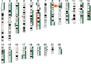 Karyotype of the synchronous collision tumor comparing MPM and PAC. Lines to the left of the chromosomes represent MPM and lines to the right represent PAC. Orange lines represent losses, green lines represent gains, and gray lines represent copy-neutral loss of heterozygosity (LOH). Loss of 9p21, which is the common genetic alterations in mesothelioma, was found in the MPM lesion (orange arrow)