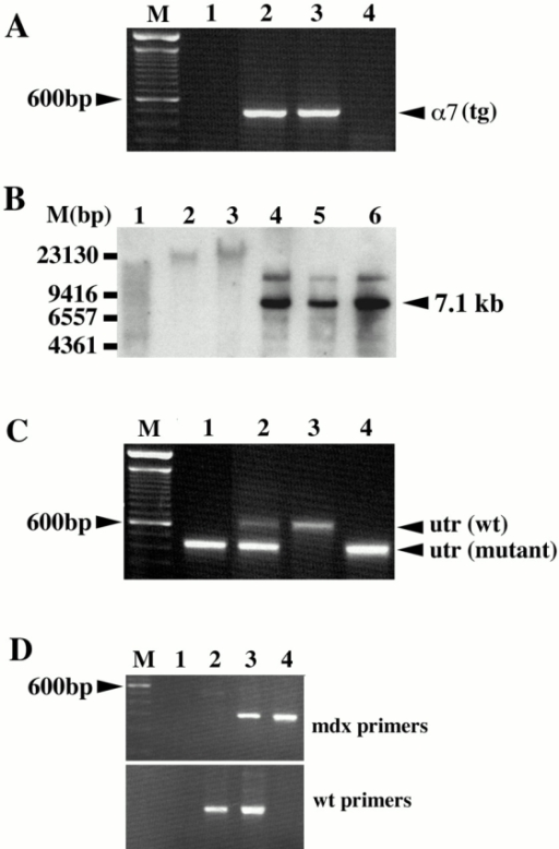 Genotyping transgenic α7BX2-mdx/utr−/− mice. (A) The α7BX2 transgene (tg) was detected by PCR using primers that amplify between the MCK promoter and the α7 cDNA sequence. Lanes 2 and 3 are positive for the MCK-α7BX2 transgene. (B) Southern blot analysis using a rat α7-specific probe of EcoRI- and KpnI-digested genomic DNA. The 7.1-kb band corresponding to the rat transgene construct is detected in lanes 4–6. A higher 14.2-kb transgene dimer was also detected. Samples in these lanes are from α7BX2-mdx/utr−/− mice. DNA in lanes 1–3 are from nontransgenic mice. (C) Determining the status of the utrophin gene by PCR. Only mutant utr alleles are detected in lanes 1 and 4, identifying utr−/− mice. One wild-type (wt) and one mutant allele are amplified in lane 2, identifying a utr+/− mouse. Lane 3 is wild-type at both utr loci. (D) Determining the status of the dystrophin gene by PCR. The mdx primer set detects the point mutation in the dystrophin gene, whereas the wt primers detect only the wild-type allele. Mouse 2 is wild-type at the dystrophin locus, mouse 3 is heterozygous (mdx/+), and mouse 4 is mdx. Lane 1 contains no DNA.