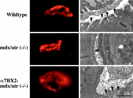 Structure of the NMJ in 5-wk-old wild-type, mdx/utr−/−, and α7BX2-mdx/utr−/− mice. (Left) En face views of AChRs in the postsynaptic membrane detected with rhodamine-labeled α-bungarotoxin. In wild-type mice, the junctions appear continuous, folded, and uninterrupted. In mdx/utr−/− mice, the distribution of AChRs is discontinuous and organized into discrete boutons. The organization of the postsynaptic membrane in α7BX2-mdx/utr−/− transgenic mice has a more continuous (normal) pattern. (Right) Ultrastructural changes in the NMJ. The postsynatic membrane of wild-type mice is highly folded (arrowheads). In contrast, mdx/utr−/− mice have little or no membrane folding. Expression of the α7BX2 transgene in mdx/utr−/− mice results in a postsynaptic membrane with partially restored folding (arrowheads). Bar, 1 μm.