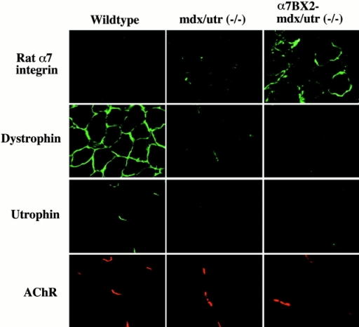 Expression of the rat α7 protein in mouse muscle. Immunofluorescence analysis of hindlimb cryosections using monoclonal antibodies against the rat α7 integrin chain, dystrophin, and utrophin. AChRs were stained with rhodamine-labeled α-bungarotoxin to identify NMJs, the sites of normal utrophin localization. The rat α7 protein is only detected in transgenic mice and localizes to the membrane of muscle fibers. The lack of dystrophin and utrophin in both transgenic and nontransgenic mdx/utr−/− mice confirms their genotypes. The fluorescent specks seen in the mdx/utr−/− muscle stained with mouse antidystrophin, antiutrophin, and anti-α7 integrin antibodies are also evident in the absence of primary antibody and are due to residual staining with secondary anti–mouse antibody.
