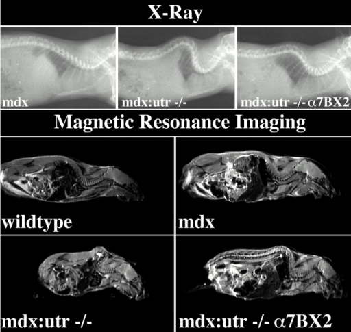 X-ray and MRI of normal and dystrophic mice. Top three panels, the severe spinal curvature (kyphosis) and constriction of the rib cage in mdx/utr−/− mice are largely reduced in the α7BX2 transgenic animals; bottom four panels, MRI of midsagittal sections reveals that kyphosis and reduction of pulmonary volume in mdx/utr−/− mice are largely alleviated in transgenic mice.
