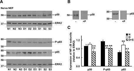 Expression of NF-κB p50, phospho-p65 (P-p65), and p65 subunits in nuclear-enriched fractions (NEF) of sciatic nerves from normal (N), 3-month diabetic (D), and sulfasalazine-treated 3-month diabetic (S) rats. A: Immunoreactivity of sciatic nerve nuclear-enriched fractions from three individual animals in each group. Blots were also incubated with anti-ERK2 to control for differences in sample loading. Numbers at the left of each panel depict the position of molecular mass markers (in kDa). B: Specificity of the signals was confirmed by immunoblotting of sciatic nerve extracts with dilutions of anti–NF-κB p50 or anti–NF-κB p65 antisera previously incubated in the presence (+P) or absence (−) of immunogenic peptides. C: Densitometry of immunoreactivity of NF-κB subunits relative to ERK2 for all animals analyzed in each group (n = 5–7) (Significantly different from **normal and ∧∧untreated diabetics at P < 0.01 as calculated by ANOVA followed by Dunnett's test).