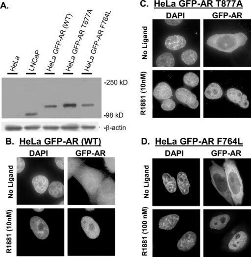 HeLa GFP-AR cell lines expressing wild type and mutant AR able to translocate into nucleus in response to agonist.A. Western blot analysis comparing HeLa (1), LNCaP (2), HeLa GFP-AR (3), HeLa GFP-AR T877A (4), and HeLa GFP-AR F764L (5) androgen receptor expression. Equal total protein levels were loaded for all cell abstracts and confirmed with β-actin control. B, C, and D. Deconvolution images of HeLa cell lines expressing stably integrated GFP-AR, GFP- AR T877A (LNCaP, ligand binding domain mutation), and GFP- AR T877A (AIS associated mutation, ligand binding domain mutation), shown without (top) and with 10 nM or 100 nM R1881 (bottom). The LBD mutation in GFP-AR T877A or GFP-F764L does not affect the ability to translocate into the nucleus.