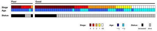 Risk factors and survival of 72 MYCN not amplified patients. Patients are divided in poor and good prognosis groups according to the NB-hypo. Columns represent individual patients. The first line represents the patients according to the International Neuroblastoma Staging System (INSS). The second line represents the patients according to the age at diagnosis (> 1 year vs. < 1 year). In the last line, the patients are divided in deceased, black squares, and alive, gray squares.