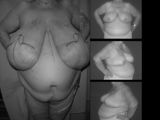 Body scan for breast reduction